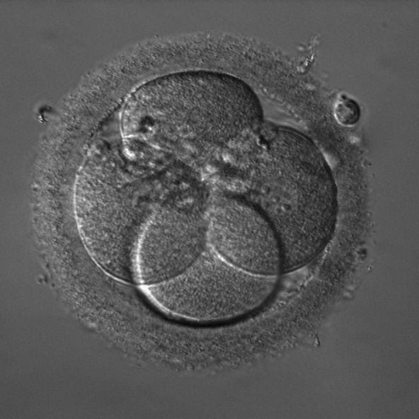 胚胎:在正确的细胞内可见含核仁的细胞核,iHMC